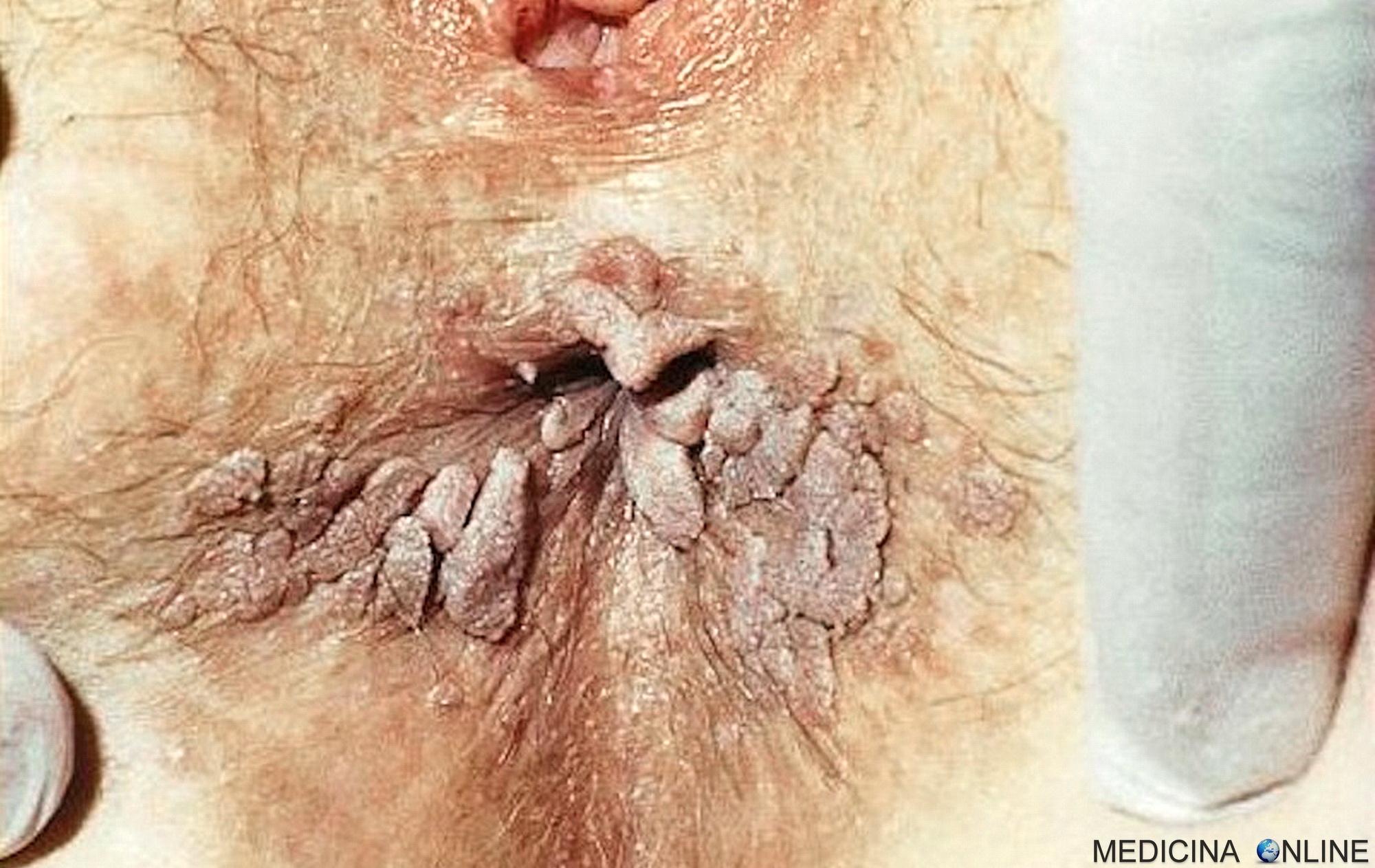 hpv condilomi ano human papilloma virus erkek