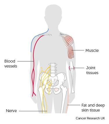 Bone Cancer, Primary Bone Cancers and Bone Metastases, Sarcoma cancer of the bone