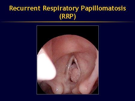 respiratory papillomatosis caused by împotriva rahitismului