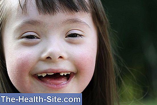 Boala Kawasaki: simptome, diagnostic, tratament | csrb.ro