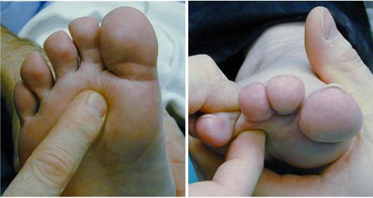 durere de picior între degetele de la picioare armpits o mulțime de papiloame de ce