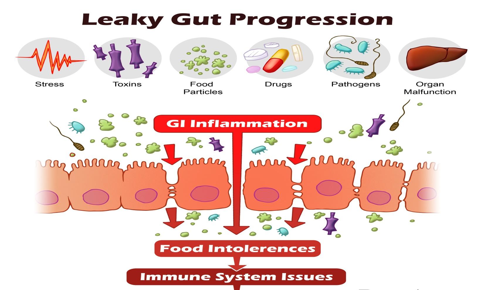 Dysbiosis leaky gut. Inflammation, dysbiosis and chronic disease kill papillomavirus
