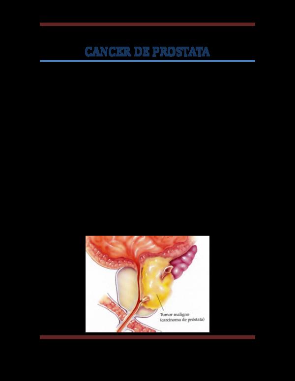 Operacion cancer de colon complicaciones. Operacion cancer de colon complicaciones