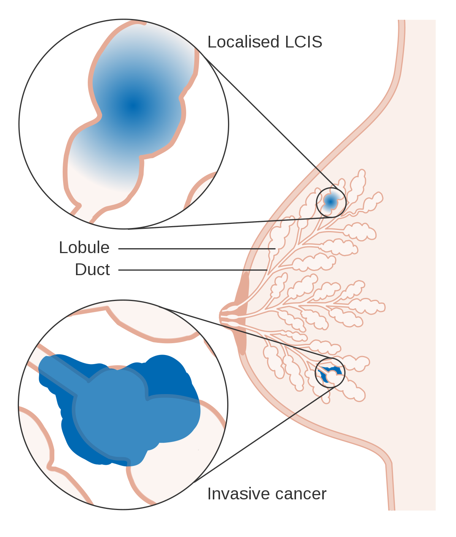 que es cancer fibroadenoma