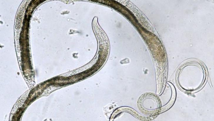 câți viermi rețete naturale de detoxifiere a colonului