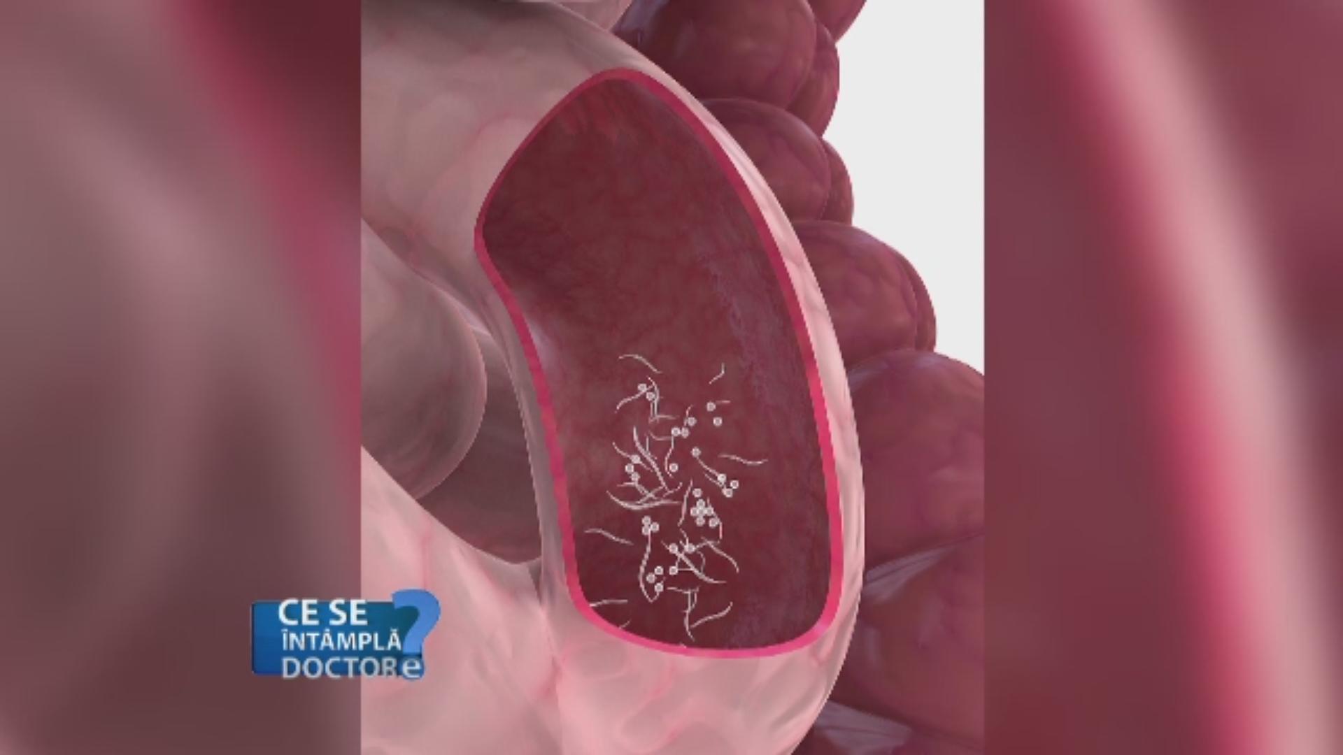 post pentru a scăpa de viermi nemathelminthes reproduksi hewan