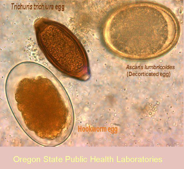 helminths paraziti poze hpv tipizalas jelentese