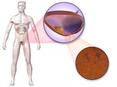 Cum să reducem riscul de cancer de vezică urinară