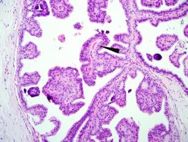 Intraductal papilloma treatment medscape., Intraductal papilloma pathophysiology medscape