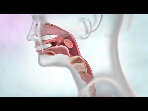 enterobioza helmintiaza