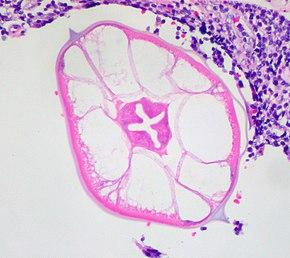 paraziti in plamani papiloma ano rectal