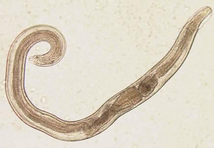 enterobius vermicularis is