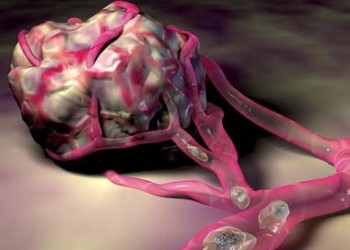 Distinctia intre tumorile maligne si benigne