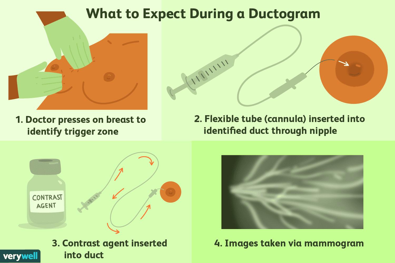 Ductal papilloma usg