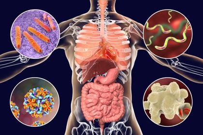 tumore da papilloma virus sintomi