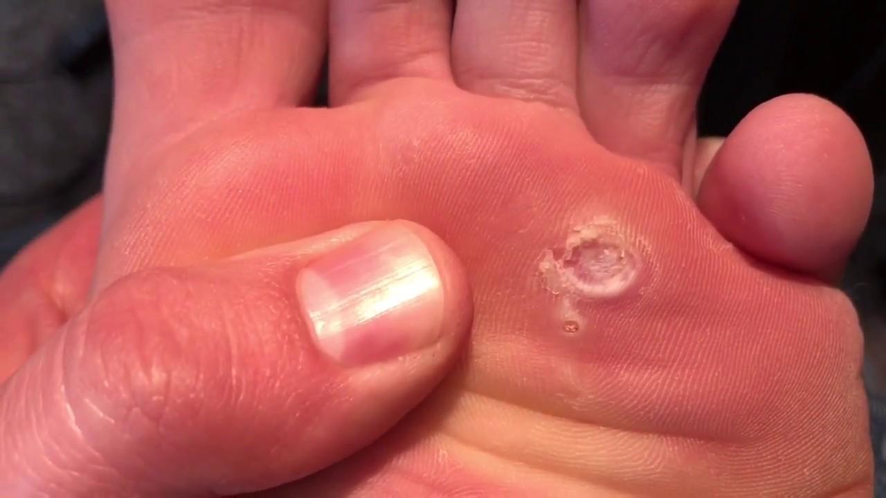 foot wart cut out