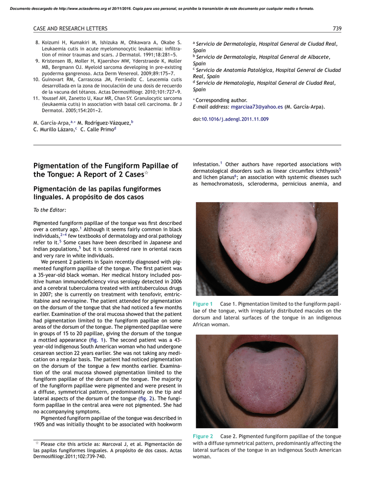 Swollen papillae tongue treatment. Swollen papillae tongue treatment
