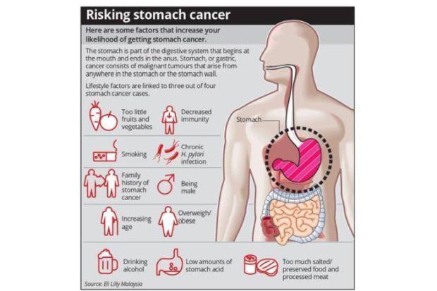 gastric cancer pain papilom diferență de verucile genitale
