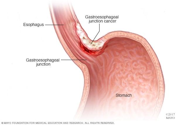 gastric cancer pain descrierea tratamentului viermilor