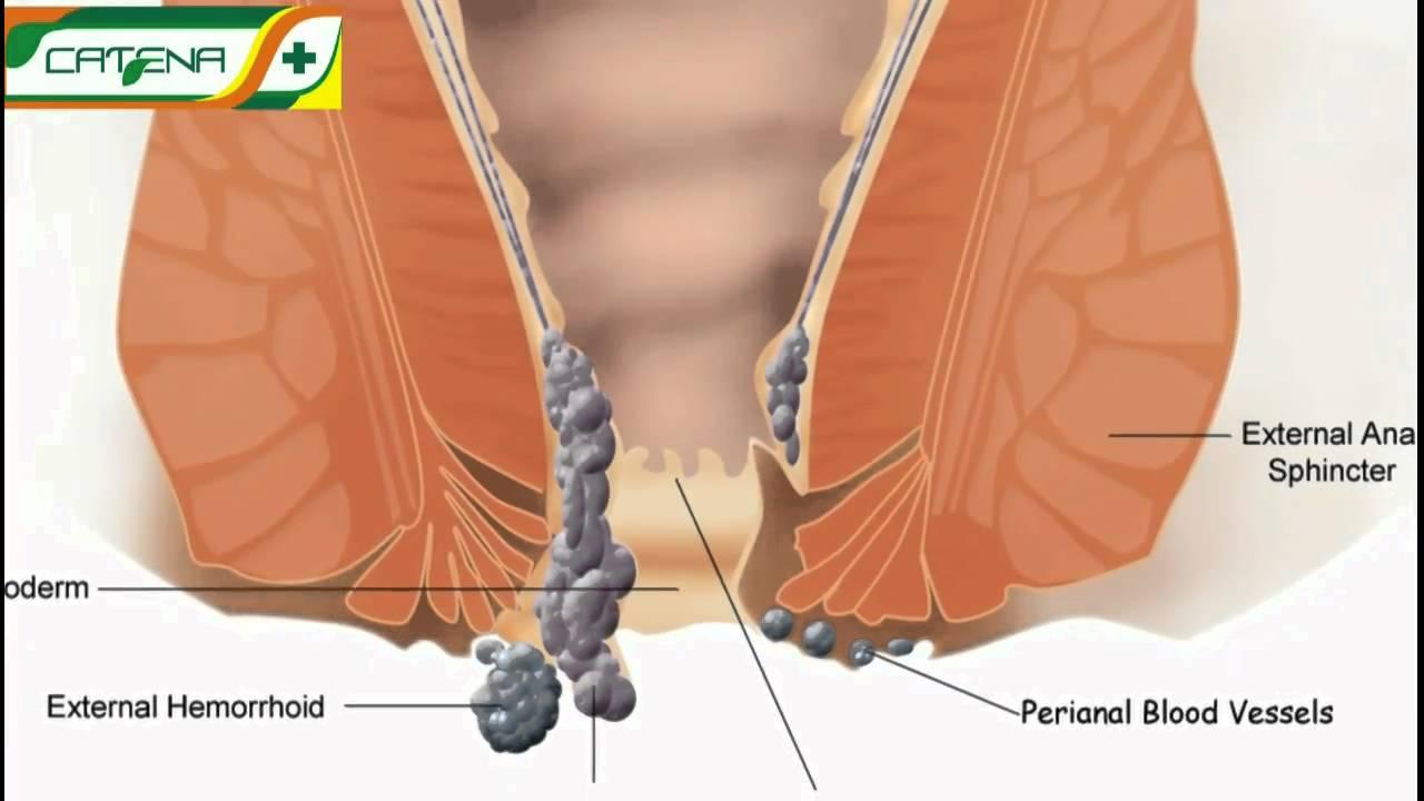 helix de tenioză fibro squamous papilloma