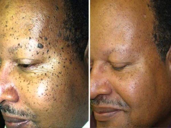 hpv face spots