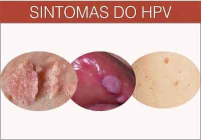Hpv genital masculina - Tot ce trebuie sa stii despre HPV: Simptome & Tratament