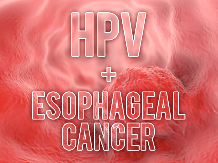 hpv infections and esophageal cancer