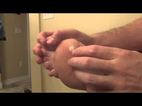 papillomavirus et douleur dermatită de contact între degete