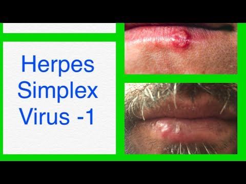 human papillomavirus infection and getting pregnant