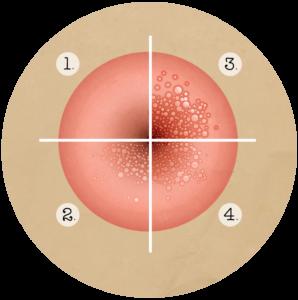 Cancerul gastric este localizat in regiunea - SFATUL SPECIALISTULUI