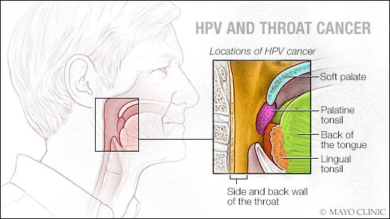 human papilloma virus negatif ne demek