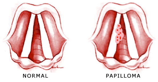 Can hpv cause laryngeal cancer - Papilloma meaning in urdu