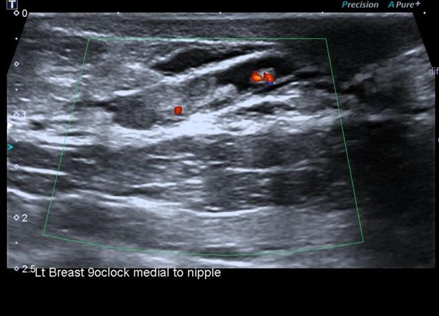 Intraductal papilloma with focal apocrine metaplasia
