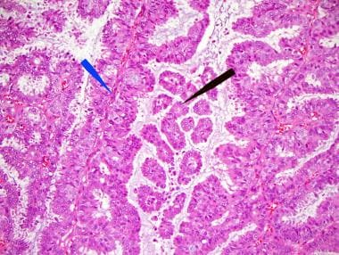 intraductal papilloma treatment medscape