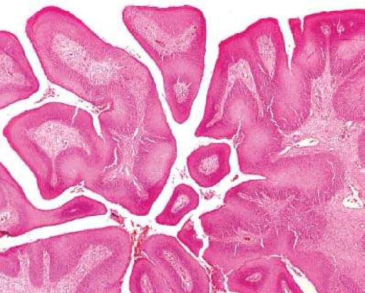 inverted papilloma nedir