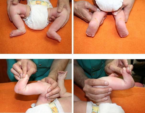 limbă între tratamentul degetelor de la picioare