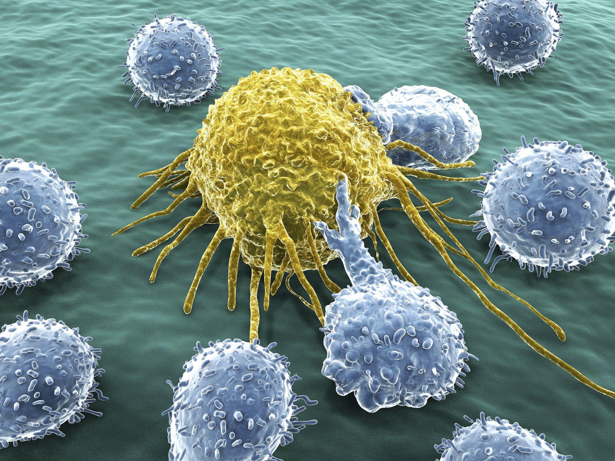 malign cancer tumor enterobius vermicularis larva