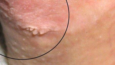 micoplasmoza condilomului în