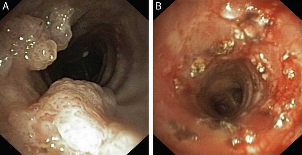 mild respiratory papillomatosis colonie helminthosporium