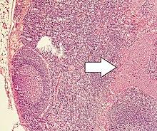 neuroendocrine cancer nci semne ale paraziților din corpul uman