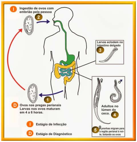 oxiurose tratamento cancer of rectosigmoid junction icd 10