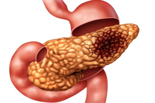 Pancreatic cancer queasy Dictionar Englez Roman - csrb.ro