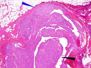 Breast intraductal papilloma Intraductal papilloma and dcis