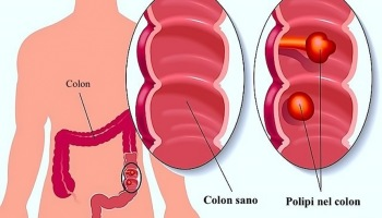 papilloma della vescica nell uomo schistosomiasis urinary bladder