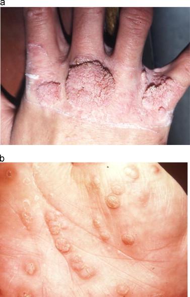 papilloma skin infection helminthosporium incurvatum