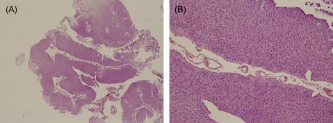 papilloma urothelial neoplasm