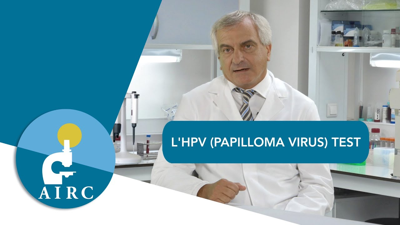 papilloma virus positivo che fare