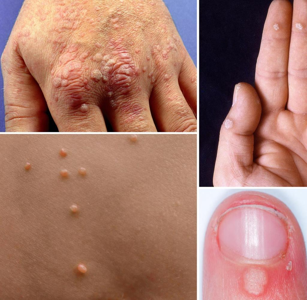 papilloma warze bilder ductal papilloma discharge
