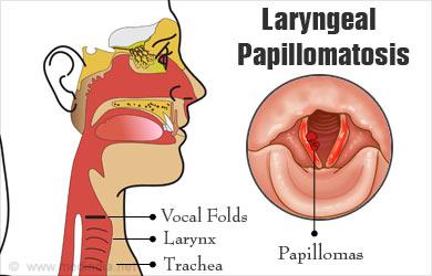 Juvenile papilloma of larynx - Papillomatosis in the larynx