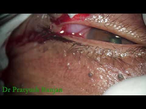 condyloma acuminata ijdvl sursa de infecție cu triocefalie